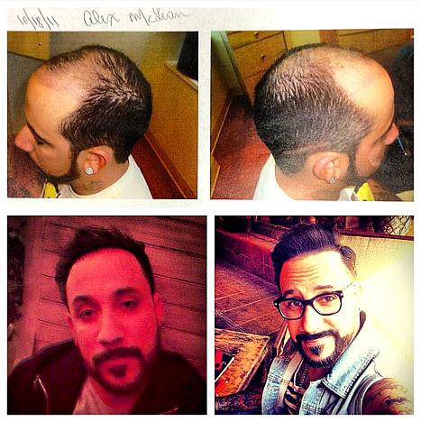 1365188321_aj-mclean-hair-transplant-467
